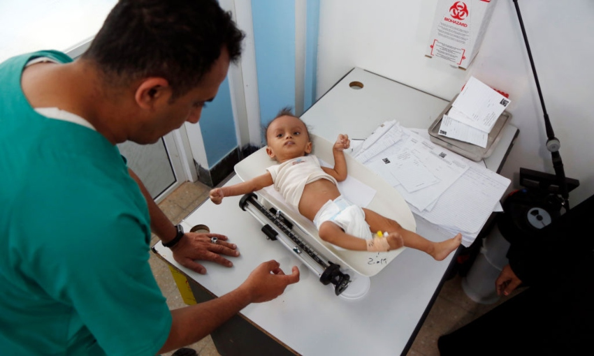 A doctor in Yemen weighing a malnourished child, where more than one in four children are acutely malnourished. (Getty Images)