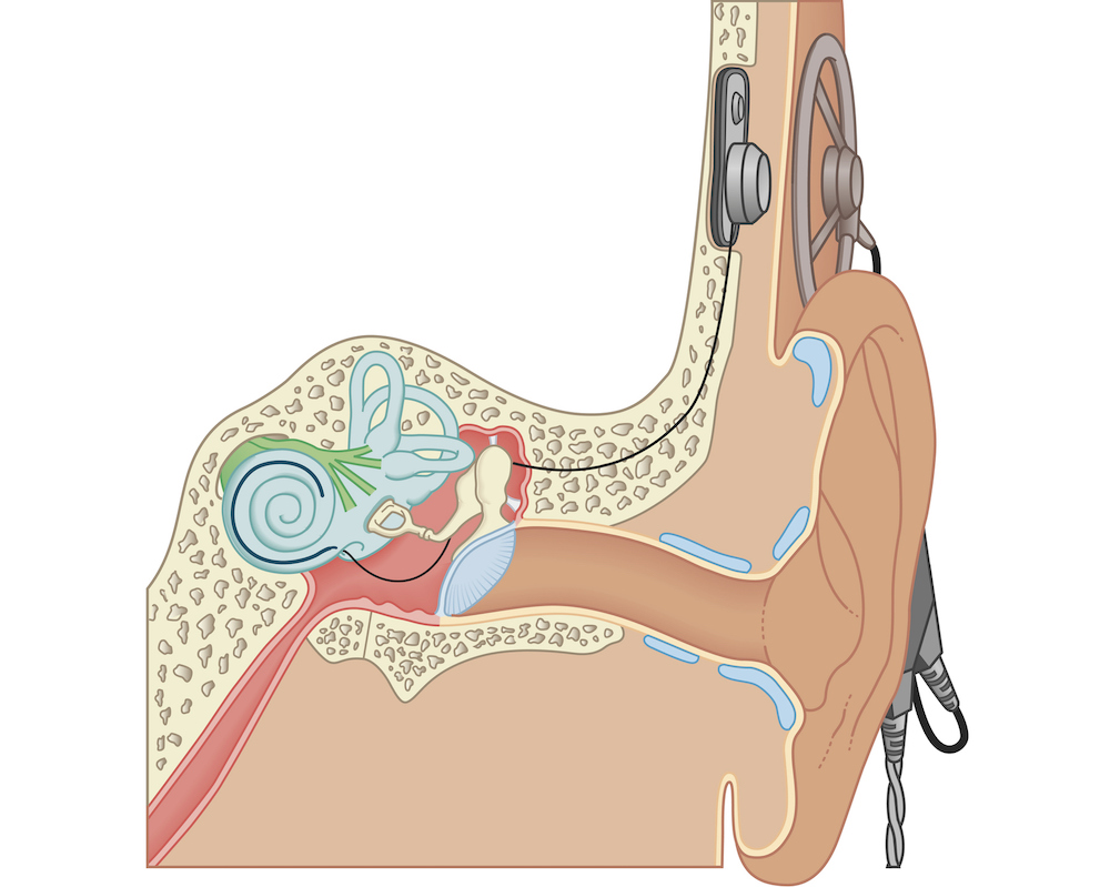Diagram of a cochlear implant